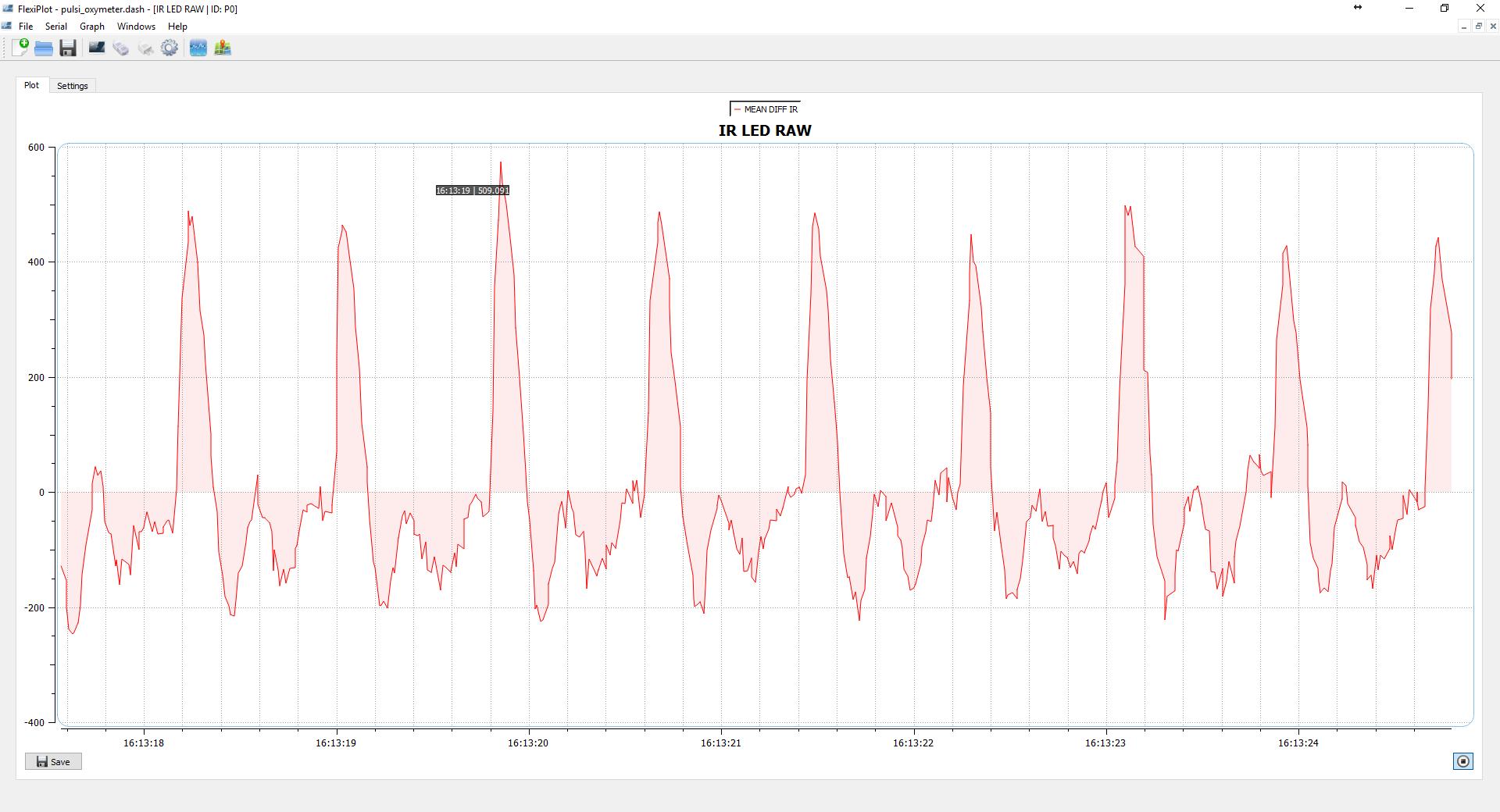 图5均值差滤波后的IR信号