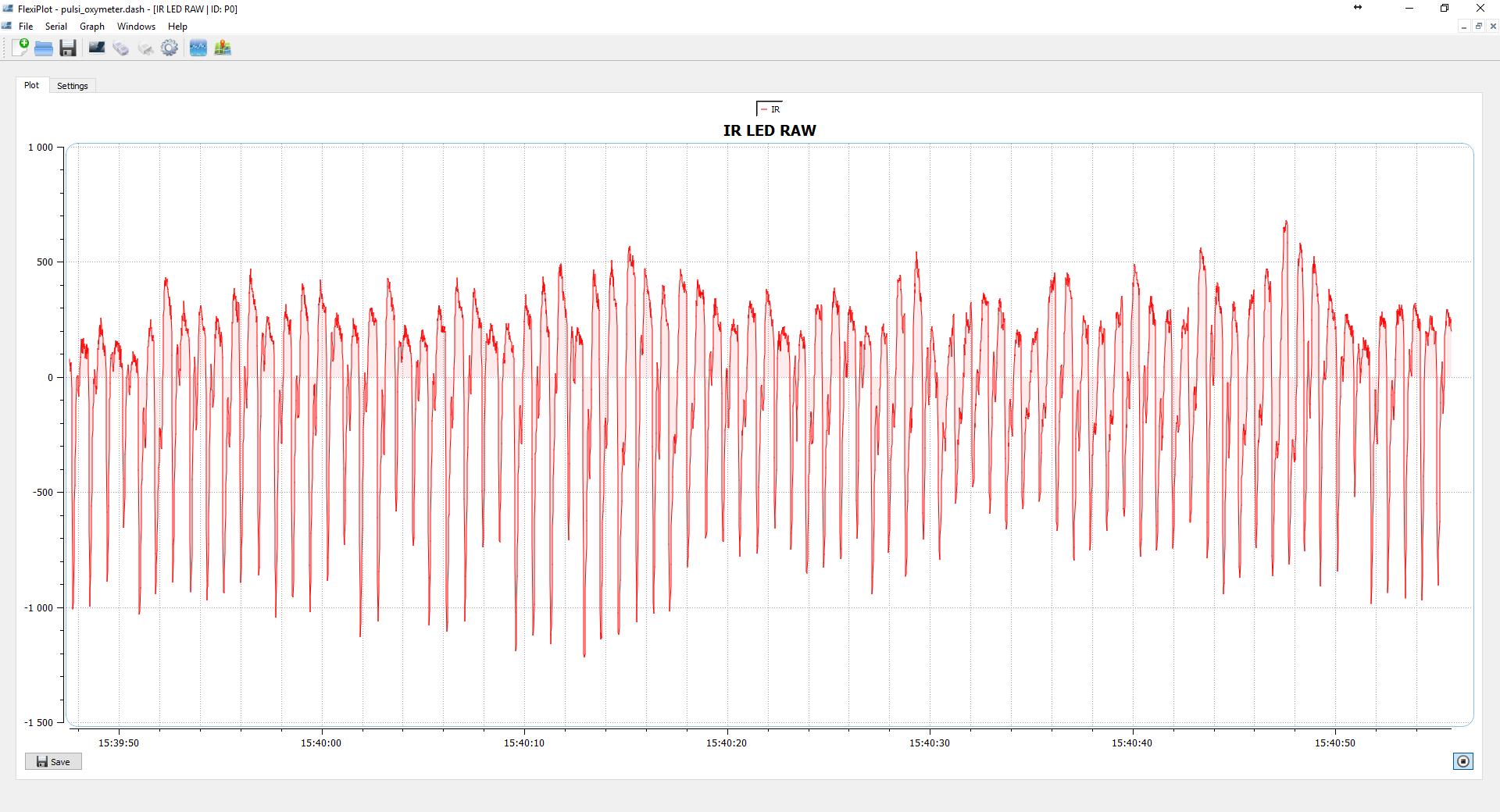 图4 红外信号通过直流去除滤波器